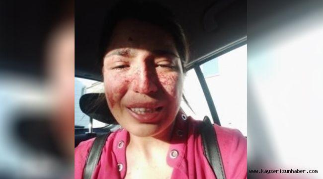 Boşandığı eşinden şiddet gören kadın, sosyal medyadan yardım istedi