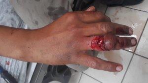 Parmağı yüzüğüne sıkışan şahsı itfaiye kurtardı